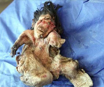 کشف جنین در شکم یک نوجوان