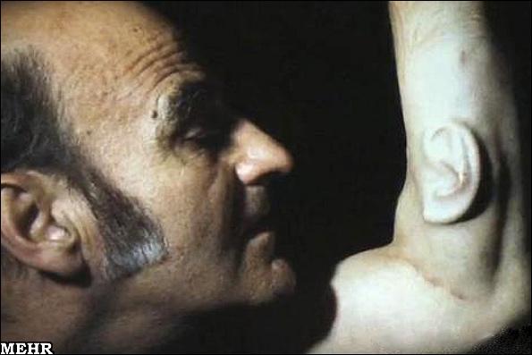 عکس پیوند زدن گوش به بازوی یک مرد