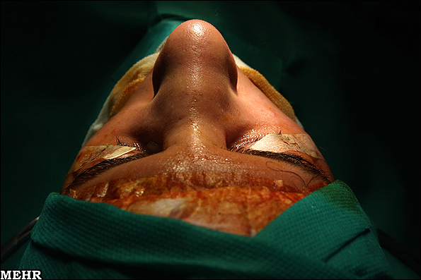 کلیپی خفن از عمل دماغ کلیپ عمل دماغ وام عمل دماغ هزینه عمل دماغ هزینه جراحی زیبایی بینی چقدره؟ مطالبی مهم در مورد جراحی زیبایی بینی عمل کردن و خطرات عمل دماغ یا عمل بینی عمل دماغ با ضمانت و بدون بیهوشی عمل دماغ عمل جراحی زیبایی بینی عاقبت عمل دماغ !!! (دختر ها ببینند) زیبایی بینی زیبای دماغ روانشناسی جراحی زیبایی بینی دماغ و دماغ دماغ جراحیهای بینی جراحی پلاستیک و زیبایی جراحی پلاستیک بینی جراحی زیبایی بینی جراحی دماغ جراحی بینی بینی بیمه عمل دماغ بهترین دکتر واسه عمل دماغ؟