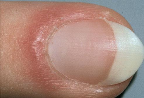 Воспаление кожи вокруг ногтя на ноге.