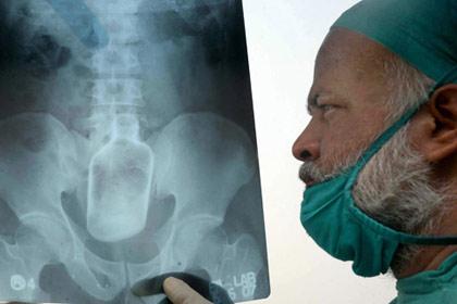 شگفت انگیزترین عکسهای رادیولوژی جهان!! www.TAFRIHI.com