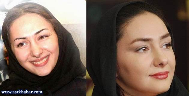 تلگرام حصین ابلیس تفاوت چهره بازیگران زن ایرانی، قبل و بعد از عمل زیبایی (عکس)