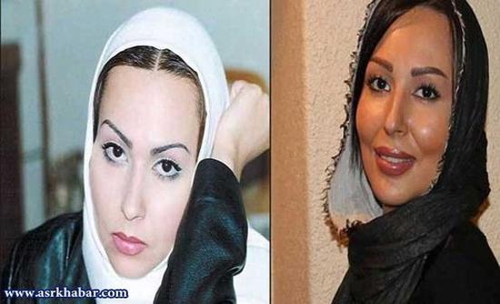 صدف طاهریان عمل زیبایی کرده بازیگران زن ایرانی قبل و بعد از عمل زیبایی! (+عکس)
