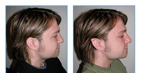 اسمش جراحی «زیبایی» هست: مدی به نام «گوش الاغی»!