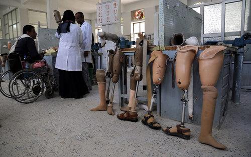 توزیع پا مصنوعی بین مصدومان جنگ داخلی در بیمارستانی در شهر صنعا یمن