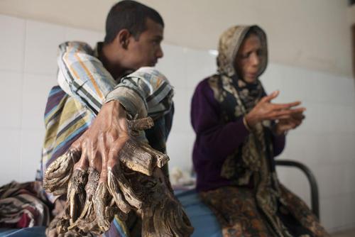 مرد درختی بنگلادشی در بیمارستانی در داکا – این جوان 25 ساله از 10 سالگی از یک بیماری نادر پوستی به نام