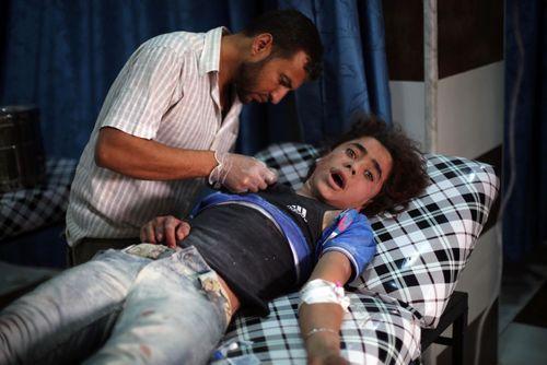 یک مجروح جنگی در بیمارستانی در شرق دمشق