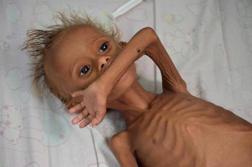 سوء تغذیه شدید کودکان یمنی – بیمارستانی در شهر بندری حدیده